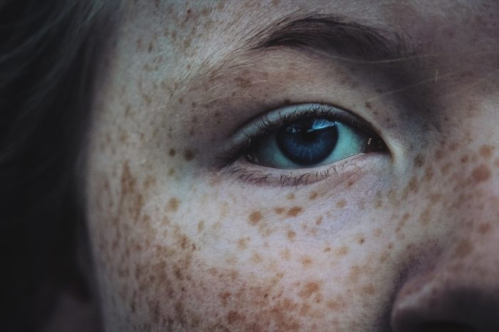 girl-freckles-blue-eyes